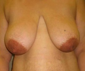 Manhattan Breast Reduction before 2